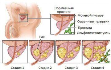 Степени-рака-простаты