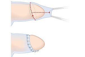 plastika-krajnej-ploti-pri-fimoze-1 (1)